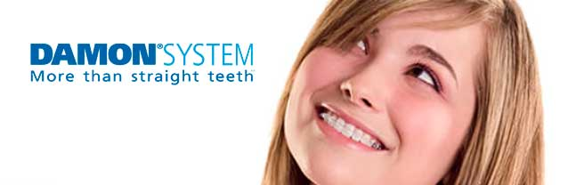 ortodoncia-damon